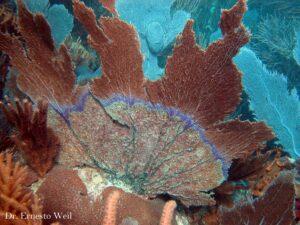 Aspergilosis y Manchas Púrpuras Multifocales